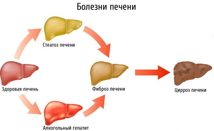 З якого боку і де знаходиться печінка у людини (фото), які симптоми при цирозі печінки і як болить